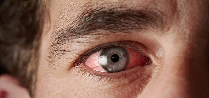 Why Does Marijuana Make Your Eyes Red? – Leaf Science